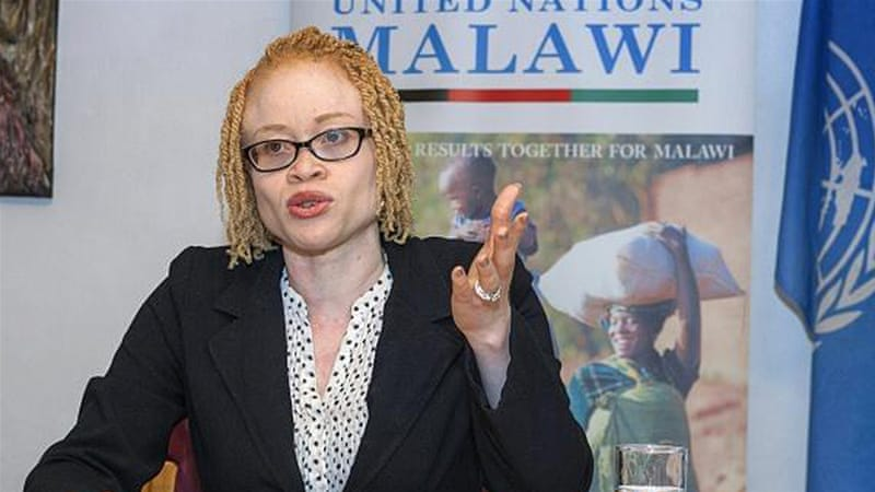 Ikponwosa Ero met people living with albinism in Malawi in April and says: 'I saw [the fear] on their faces and heard it as they talked. I felt it myself' [AFP]