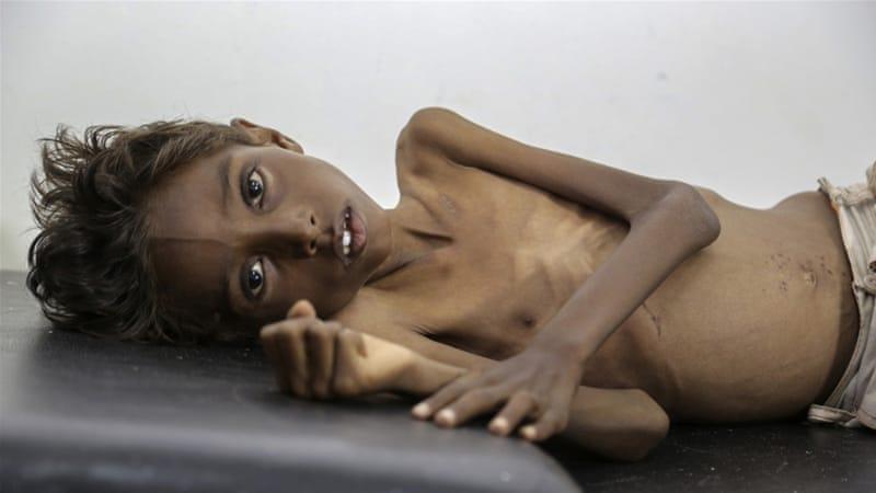 Image result for starving in yemen