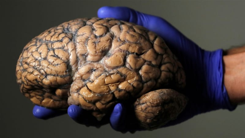 Huntington's disease: hope for a cure following 'ground-breaking' trial