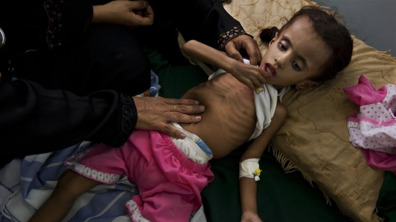 Malnutrition is a chronic problem in Yemen as the Saudi-led war rages on [Brent Stirton/Getty Images]