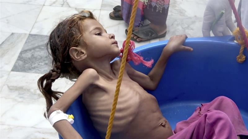 Severely malnourished children were being treated at Aslam Health Centre in Hajjah, Yemen [Hammadi Issa/AP]