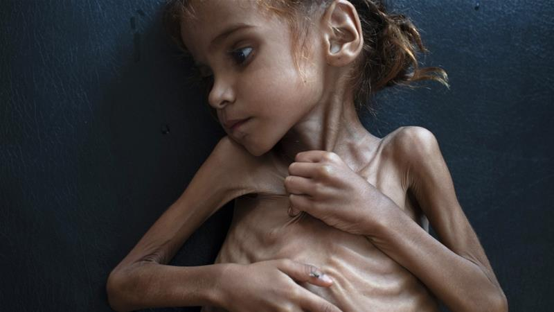 Amal Hussain died of malnutrition in a refugee camp in northern Yemen. She was seven years old [Tyler Hicks/The New York Times/Redux]
