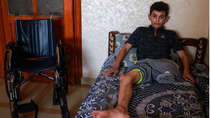 Abdullah al-Anqar was shot at with an explosive bullet by Israeli soldier last month, resulting in the amputation of his left leg [Hosam Salem/Al Jazeera]