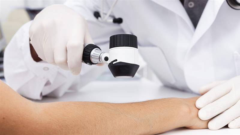 Australian scientists develop 'world's first' melanoma blood test