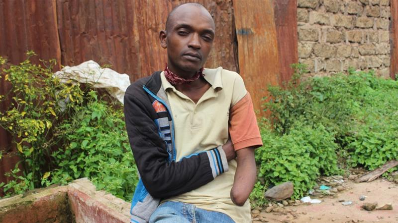 Nkonja had his left arm cut off by a group of men after he was caught stealing in the town of Meru [Idris Mukhtar/Al Jazeera]