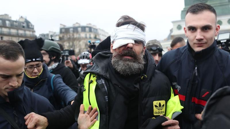 Yellow vest protester Jerome Rodrigues was struck with a 'flashball', the 40mm rubber projectile used by French anti-riot police [Zakaria Abdelkafi/AFP]