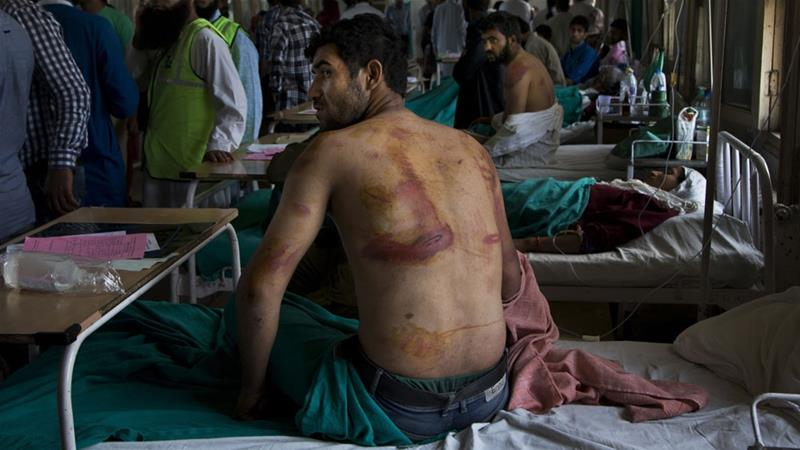 In this August 18, 2016 photo, a Kashmiri man allegedly beaten up by Indian soldiers recovers at a local hospital in Srinagar, Indian controlled Kashmir [File: Dar Yasin/AP]