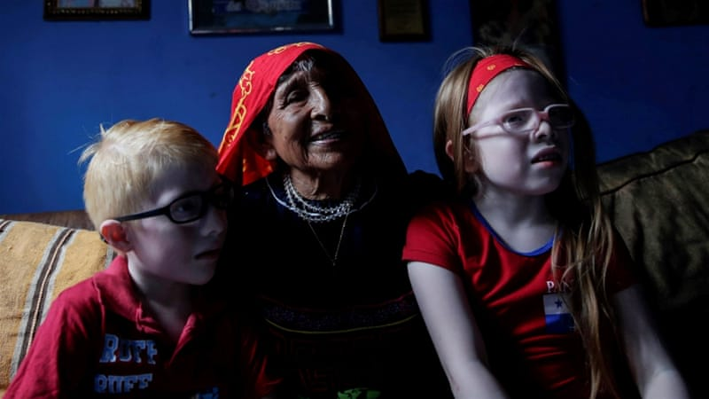 The indigenous Guna: Living with albinism in Panama