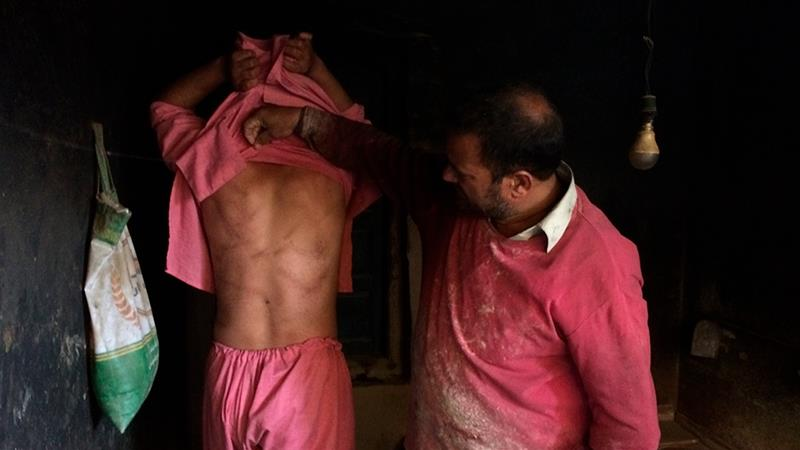 Kashmiri baker Sonaullah Sofi shows torture marks on his son [/Aijaz Hussain) [The Associated Press]