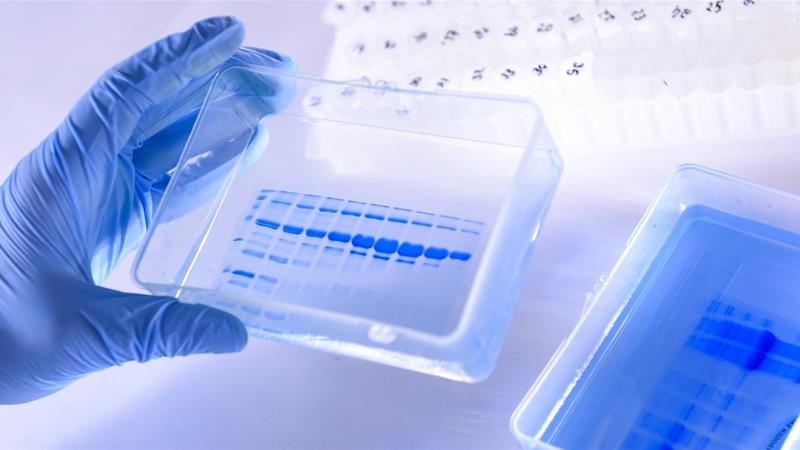 World Health Organization clarifies remarks on 'very rare' asymptomatic Covid-19 spread
