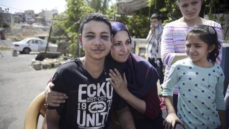Tariq Abu Khdeir was hugged by his mother Suha after he was released from detention in Jerusalem [AP]