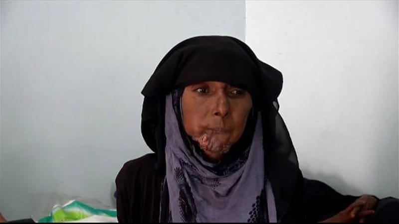 Yemen's cancer patients suffer as clinics are closing