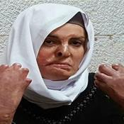 Israa Jaabis: Israel neglecting prisoner's medical need