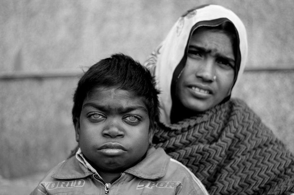 <p>Narendra Kumar Sain,15, from Uttar Pradesh has been living on the pavement outside AIMS. He suffers from stunted growth and is awaiting a doctor(***)s appointment.</p>