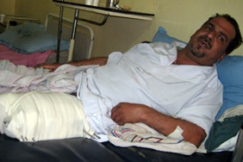 Retired school teacher Abdel Amir Hassan was injured in the Baghdad shooting [File: AFP]