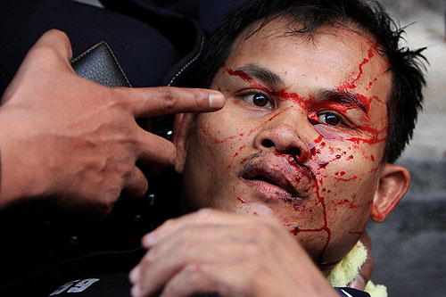 PHUKET, THAILAND - OCTOBER 7:  Riot Police is injury outside The Parliament House on October 7, 2008, in Bangkok, Thailand. The violence began when police moved in firing teargas rounds to clear protesters from the streets outside parliament to allow politicians a means to exit..(Photo by Chumsak Kanoknan/Getty Images)