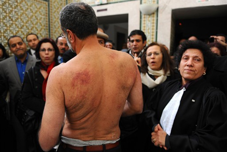 Many lawyers were arrested. One took his shirt off to show that he had been tortured by police while detained [AFP]