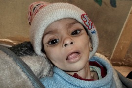 Baby Israa al-Masri died of a hunger-related illness on January 11, 2014 in the Yarmouk camp [AP]