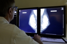 US research links cancer to plain bad luck