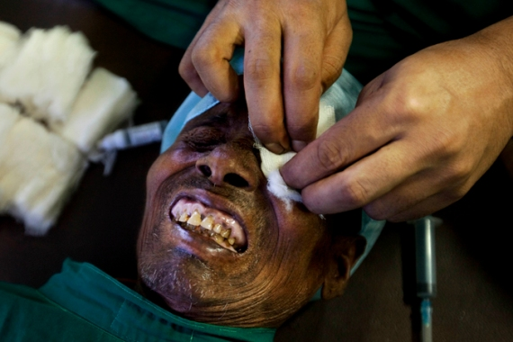 About 62 people underwent the eyesight surgery at a camp in Punjab last month  [File: AP]