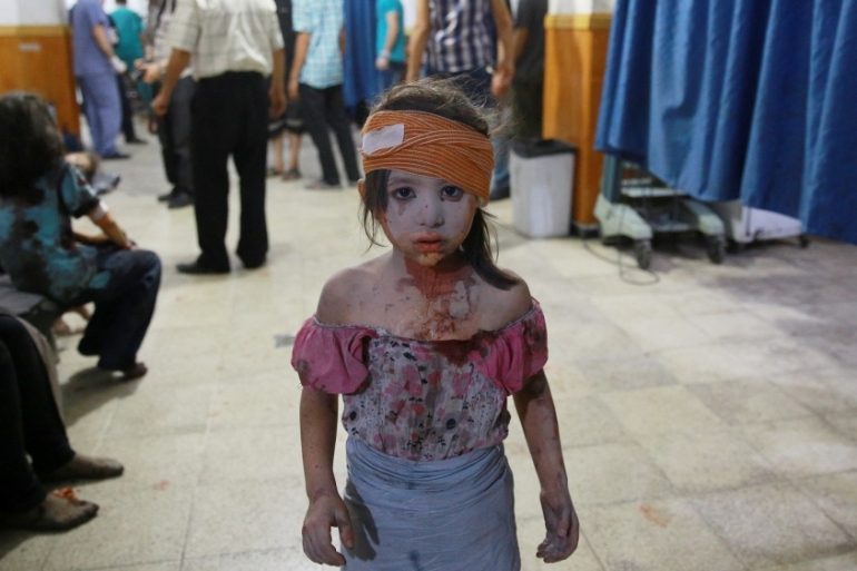 A wounded Syrian girl looks on at a makeshift hospital in the rebel-held area of Douma [AFP]