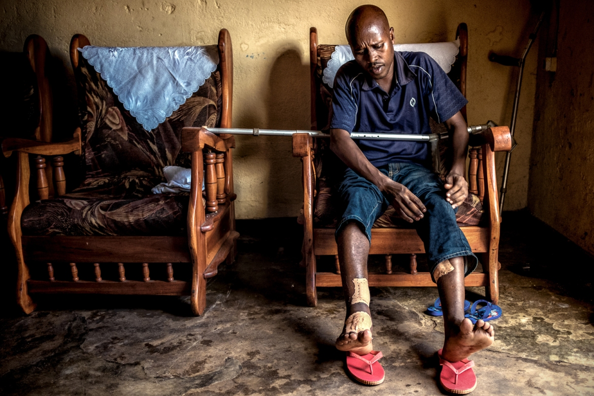 Gide, 36, lives in Nyakabiga, a neighbourhood of Bujumbura. He says he was shot three times in the legs by police on October 28, as a consequence of his political actions. [Al Jazeera]
