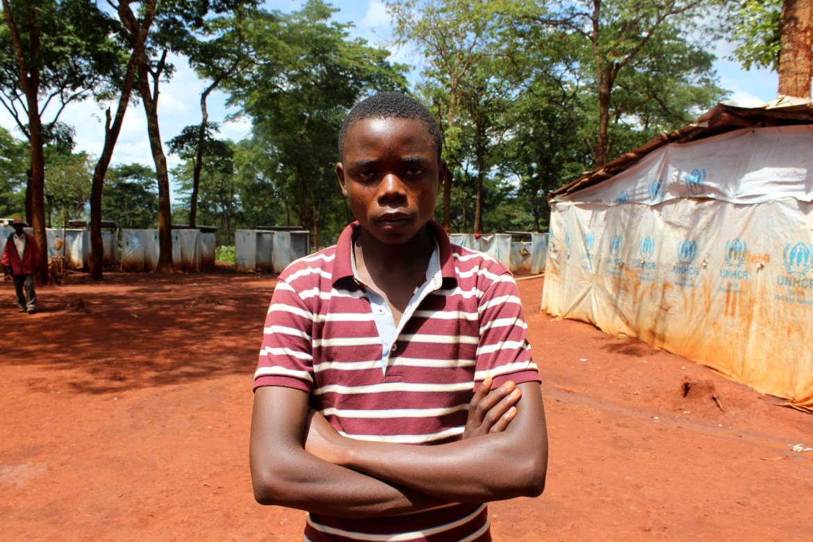 Alexandre Nishimiwe, 15, was assaulted by an alleged former pro-government soldier at Nyarugusu camp as he played with his friends. The attack severely injured his head. His mother believes she was the intended target of the attack which took place in August. [Tendai Marima/Al Jazeera]