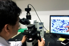 Dr Zhou Xulong analyses a patient's tumour cells before an intervention [Simina Mistreanu/Al Jazeera]