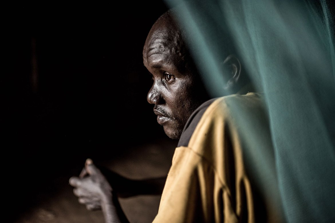 Owot Moses, 35, lost his sight to river blindness in 2011. As a result, he had to stop working and was divorced by his wife.  [Tommy Trenchard/Al Jazeera]