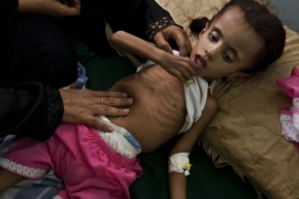 As of August, 370,000 children in Yemen were suffering from severe acute malnutrition, according to UNICEF [Getty Images]