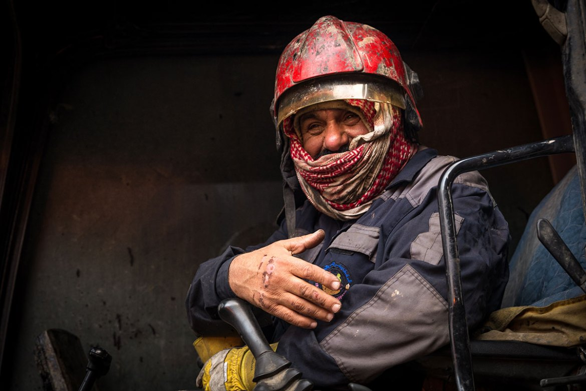 A machine operator proudly shows a burn on his hand sustained while fighting a fire. Several firefighters have suffered injuries or developed respiratory problems. [Claire Thomas/Al Jazeera]