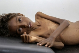 Will international community help avert Yemen famine?
