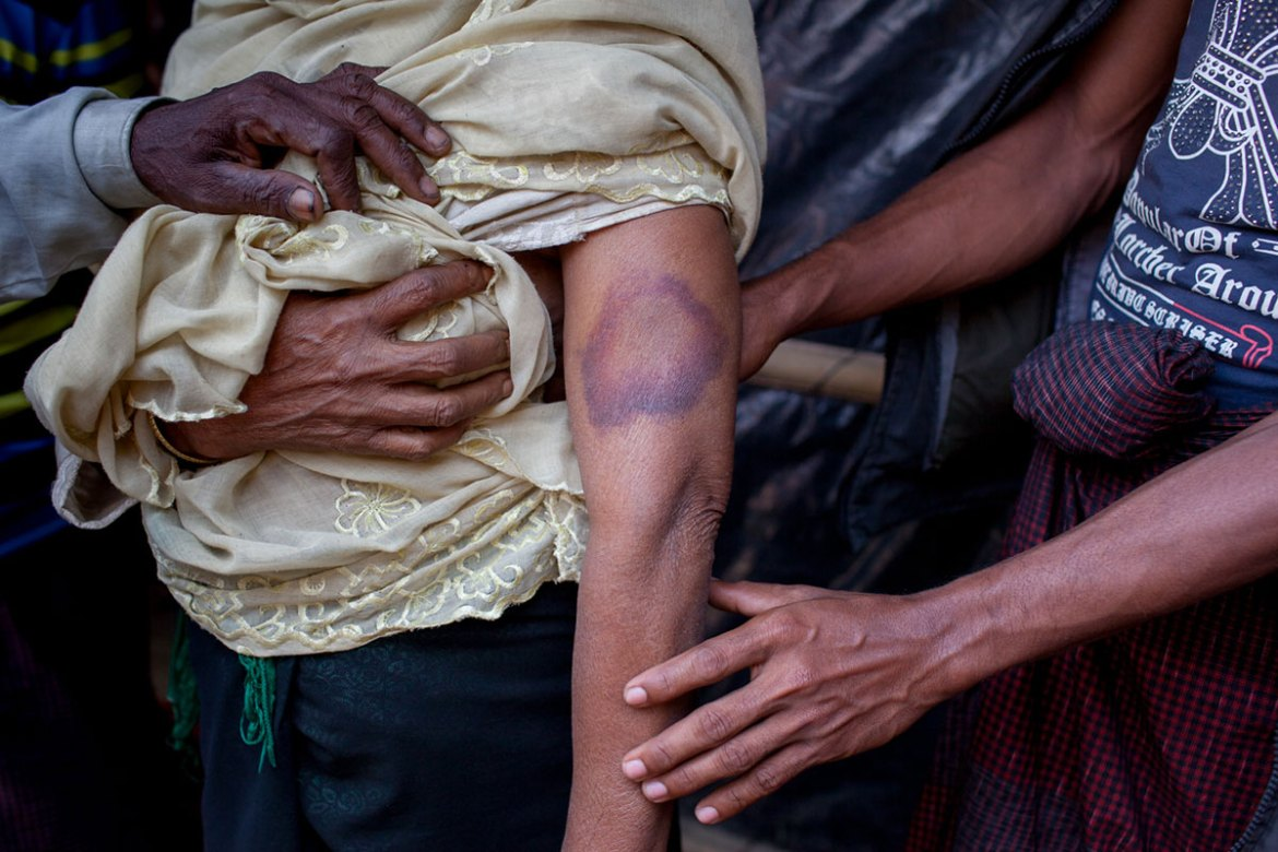 Nur Fatema, 60, shows the bruises on her arm she says were caused by Myanmar soldiers beating her. [Mahmud Hossain Opu/Al Jazeera]