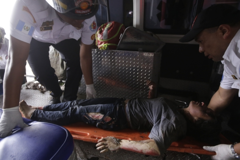 A girl burned in the fire is transported to hospital [Esteban Biba/EPA]