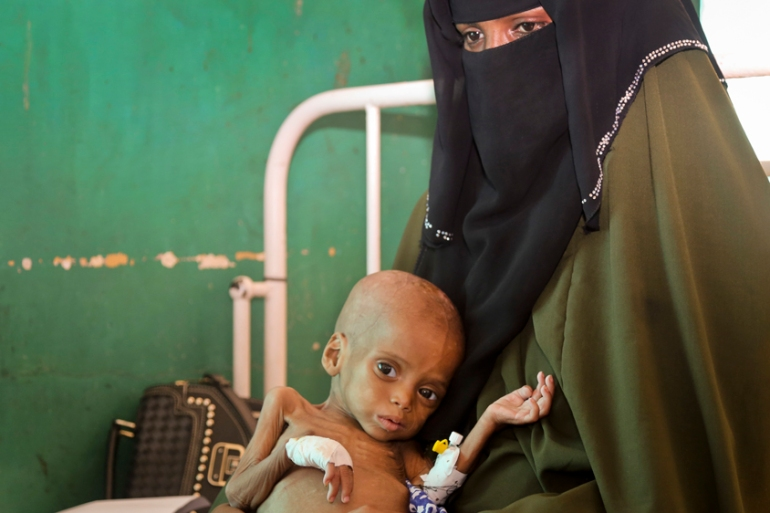 Acutely malnourished Sacdiyo Mohamed, nine-months-old, is treated at a hospital in Mogadishu this month [Mohamed Sheikh Nor/AP]