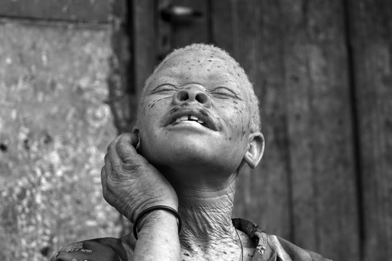 Persecution of people with albinism