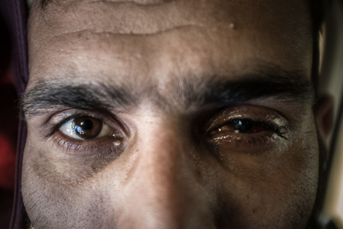A Kashmiri 26-year-old labourer and father of two, who requested anonymity, shows his left eye, which was blinded by pellets. The Indian army was searching for his younger brother in the Baramulla district during protests against Indian rule, in which he says he was not participating. He suffers from chronic pain as a result of the injury. 'A bullet is better than a pellet, you die at once,' he says. [Violeta Santos Moura/Al Jazeera]