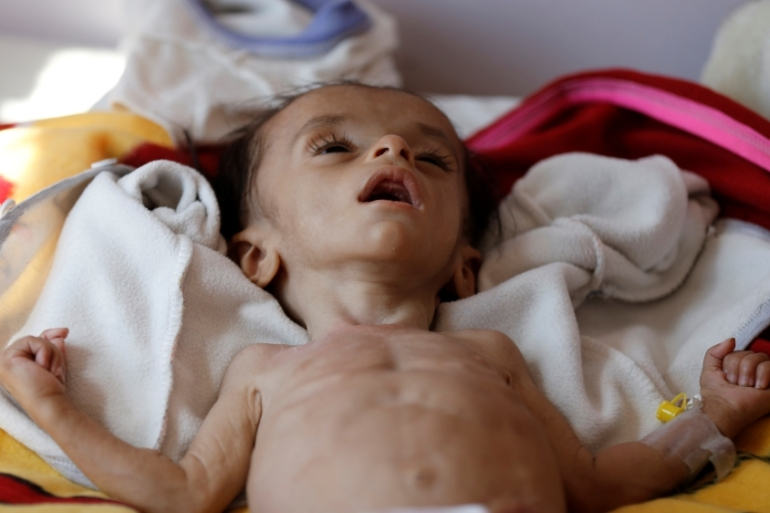 More than a million Yemeni children under age of five are malnourished [Khaled Abdullah/Reuters]