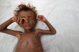 A photograph from September 2016 shows a malnourished boy laying on a bed outside his family's hut in Hodaida, Yemen [Abduljabbar Zeyad/Reuters]