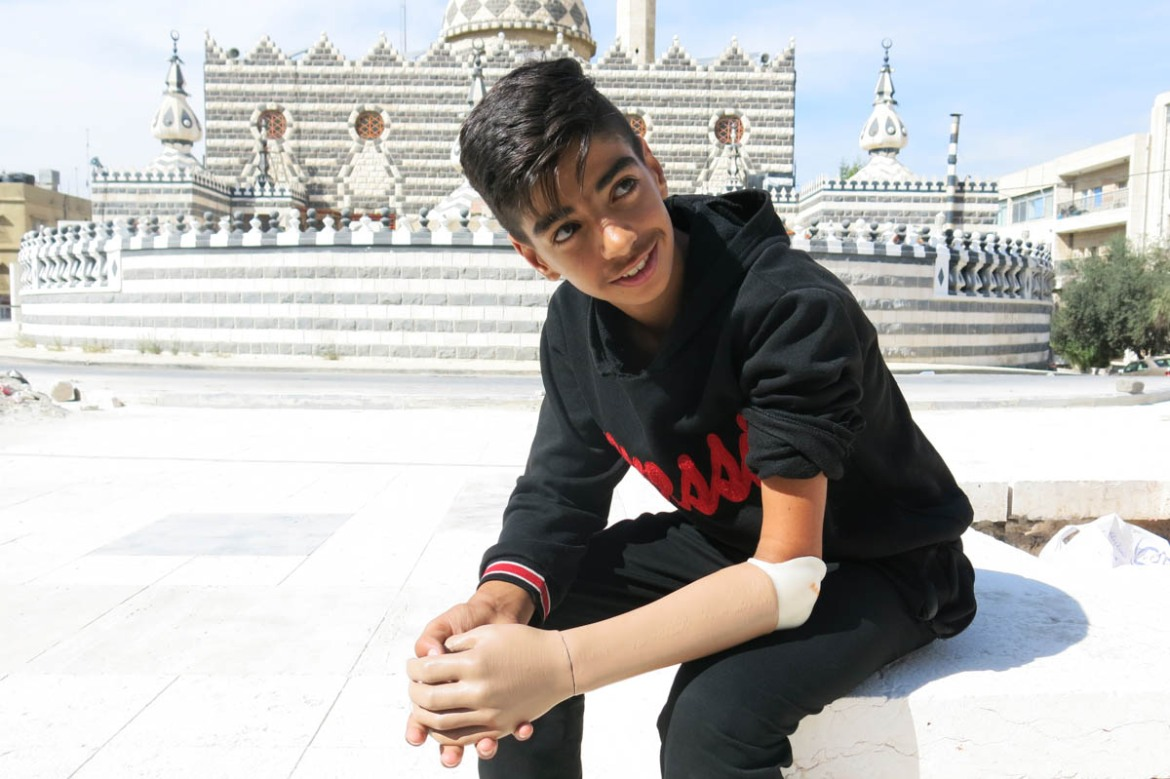 Moataz Al Khateeb, 15, is a Palestinian residing in Amman. His left arm was affected by a congenital limb defect. His 3D-printed prosthetic arm was built using the image of the intact limb as a template. He says the conventional prosthetic he used before was heavy, tight and caused pain in his shoulder and he never got used to it. He wore it at school, but not for more than five minutes. [Elisa Oddone/Al Jazeera]