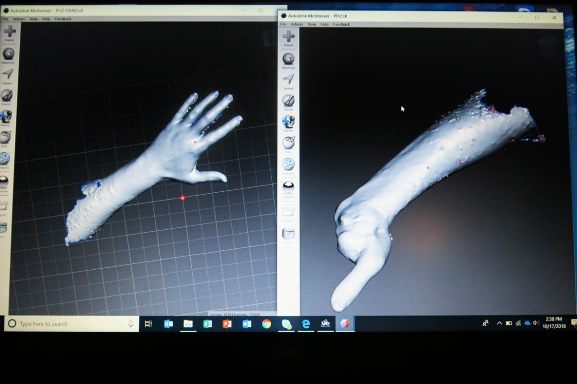 A scan of Ibrahim's intact hand. The image will be later reversed using the software. The result will be a mirrored picture to be matched with the scan of the injured part. This process allows for more accuracy when producing the prosthesis. In the case of a partially injured hand, Moreau says, the top priority is that the prosthetic doesn't affect the hand's remaining functions. [Elisa Oddone/Al Jazeera]