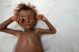 A malnourished boy lies on a bed outside his family's hut in al-Tuhaita district of the Red Sea province of Hodaida, Yemen [Abduljabbar Zeyad/Reuters]