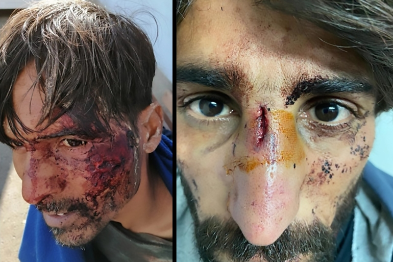 Asylum seekers say they were beaten by Croatian authorities after crossing into the EU country [Handout/Danish Refugee Council]