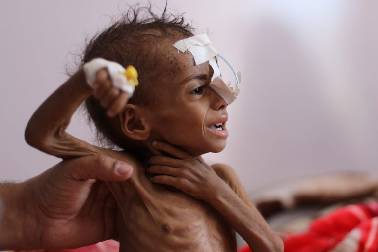 A nurse holds a malnourished girl at al-Sabeen Hospital in Sanaa, Yemen [Khaled Abdullah/Reuters]