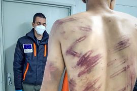 A migrant alleging he was physically abused by Croatian law enforcement officers poses for photographs taken by medical staff documenting his injuries in Velika Kladusa, Bosnia [AP Photo]