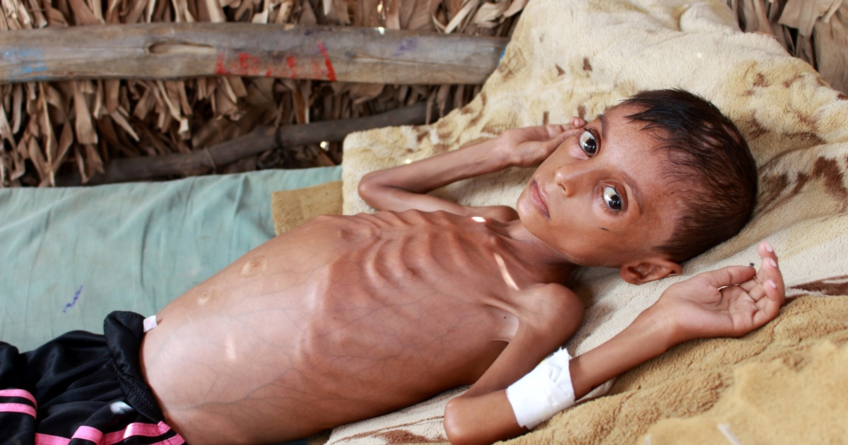 UN warns of Yemen 'dying sentence' as donor pledges fall brief