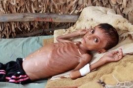 Malnourished boy Hassan Merzam Muhammad lies on a bed at his house in the Abs district of Hajjah province, Yemen File: Eissa Alragehi/Reuters]