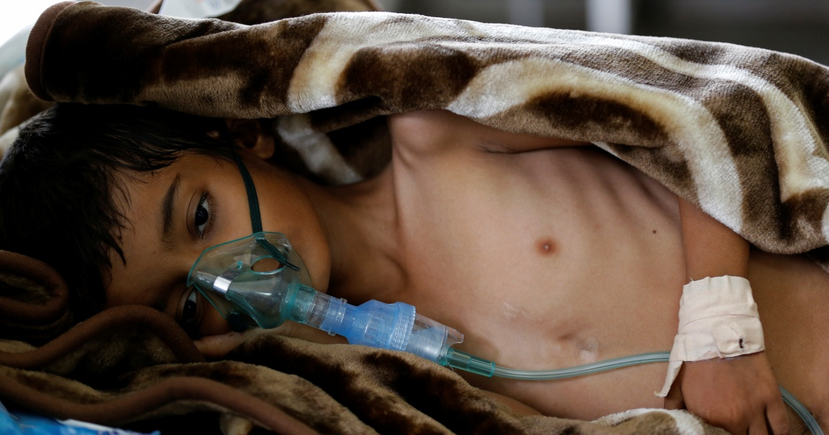 UN plans to boost practically bn for Yemen amid menace of famine