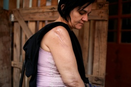 Daniela Gasparin, 38, who said she lost her hand and suffered 11 stab wounds when her former partner attacked her with a knife on a bus, sits outside her home in Boituva, Sao Paulo state, Brazil on June 5, 2019. Gasparin's ex-boyfriend was convicted of attempted murder, and his appeal was denied. [File: Pilar Olivares/Reuters]
